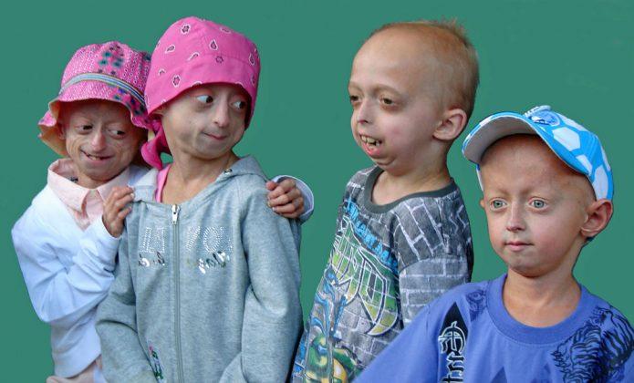 Дети, больные прогерией