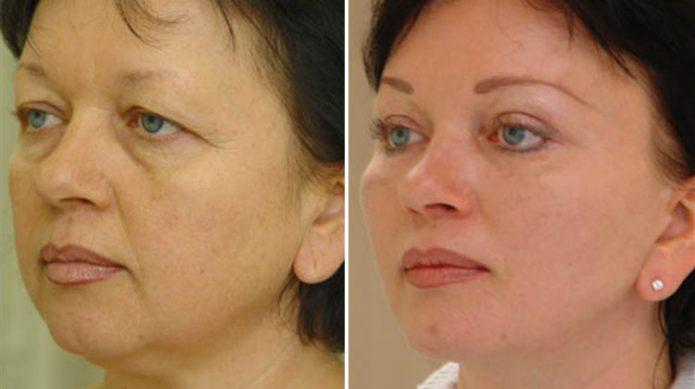 Результат пластической операции лица