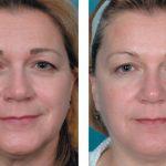 Фото до и после миофасциального массажа