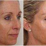 Фото до и после скульптурного массажа