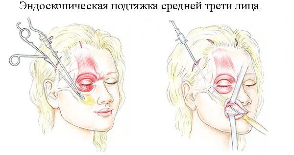 Эндоскопическая подтяжка