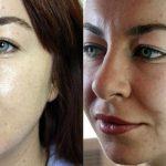 Лицо до и после лазерной наноперфорации