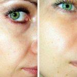 Лицо до и после миостимуляции лица