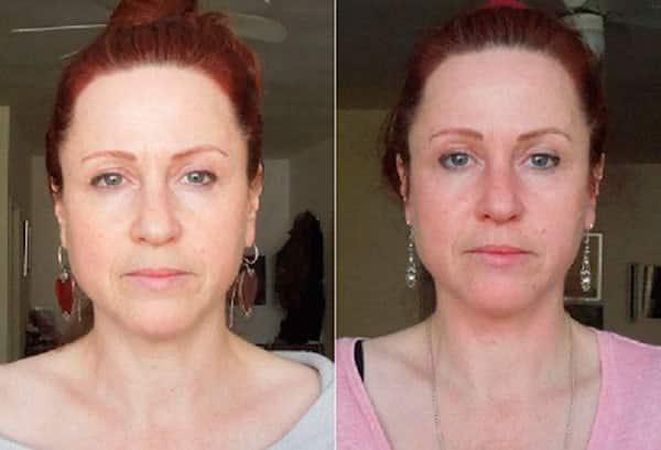 Фото женщины до и после курса массажа