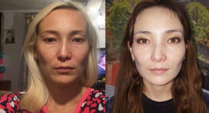 Результат ультразвуковой подтяжки лица