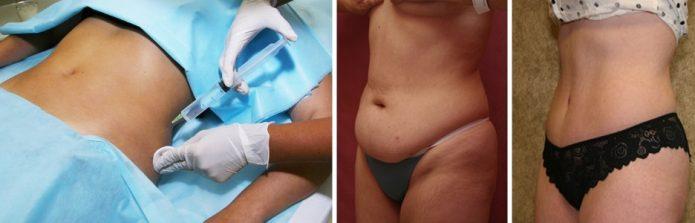Процедура мезотерапии, фото до и после