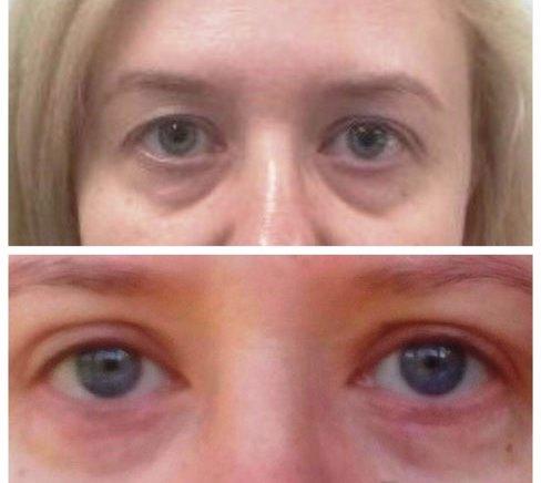 Два фото одной и той же женщины с разной формой верхнего века