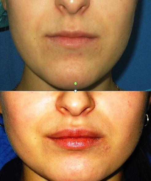 Изображение одной и той же женщины с разной формой губ