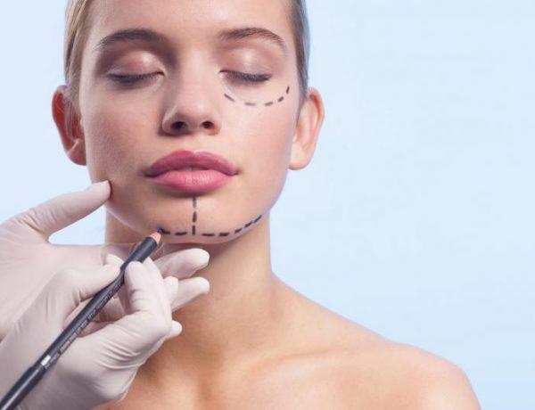 Женщина с нанесенной на лицо разметкой для пластической операции