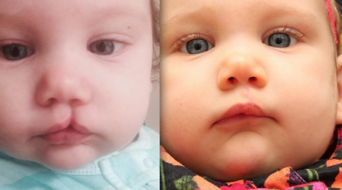 Лицо ребенка с заячьей губой до и после коррекции дефекта