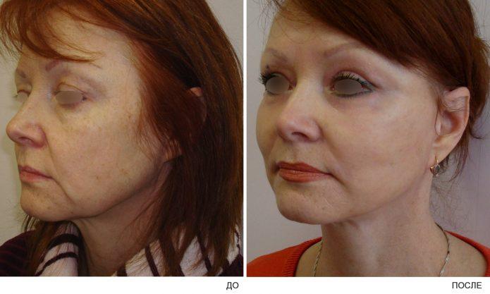 Фото женщины до и после пластики щек