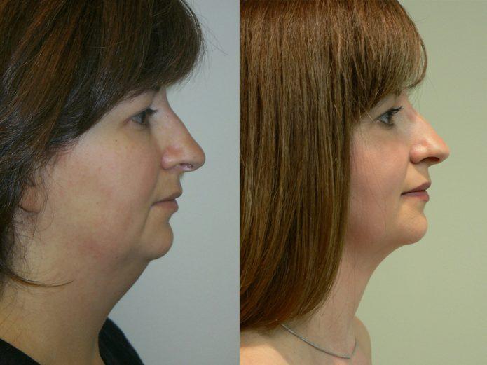 Фото женщины до и после липосакции лица