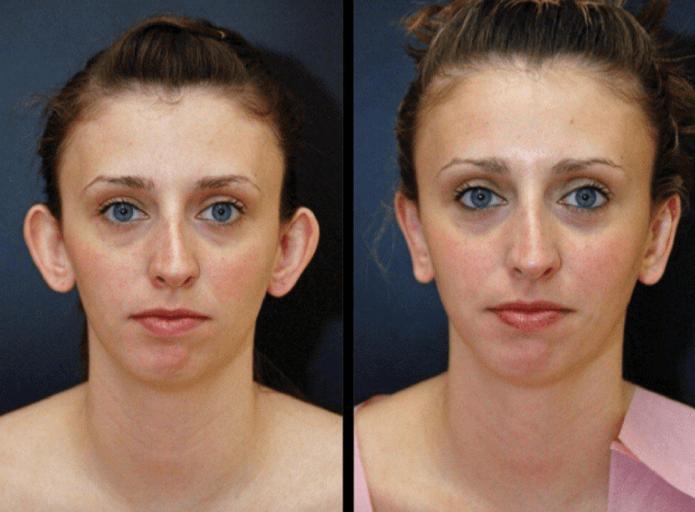 Фото женщины до и после отопластики