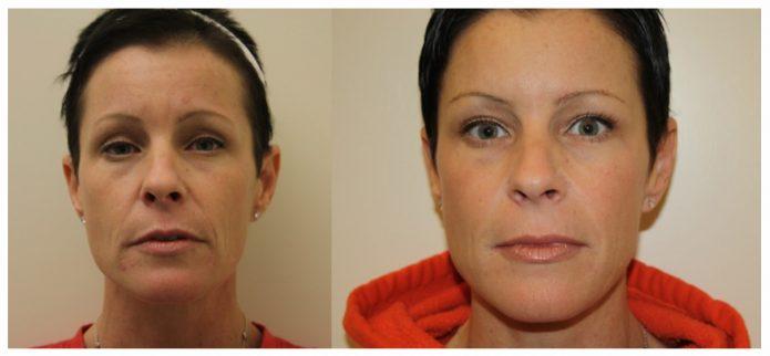 Изображение женщины до и после контурной пластики