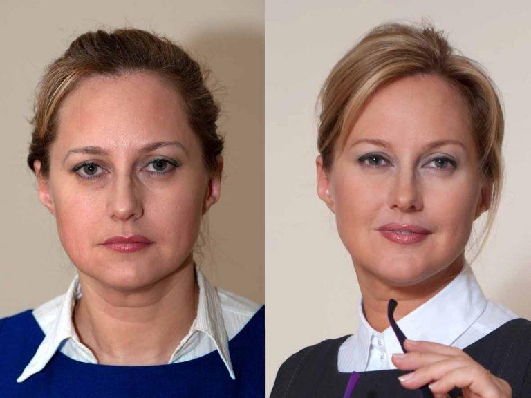 Ситимед увеличение фото до и после