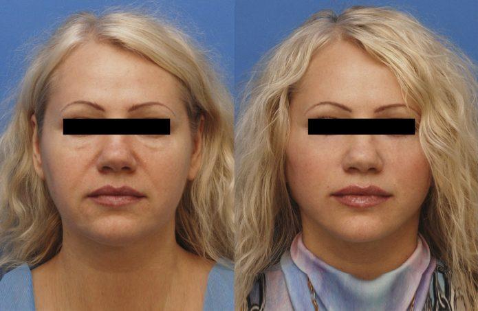 Фото женщины до и после круговой подтяжки лица
