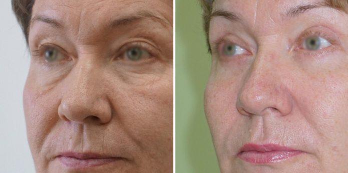 Фото женщины до и после эндоскопической подтяжки лица