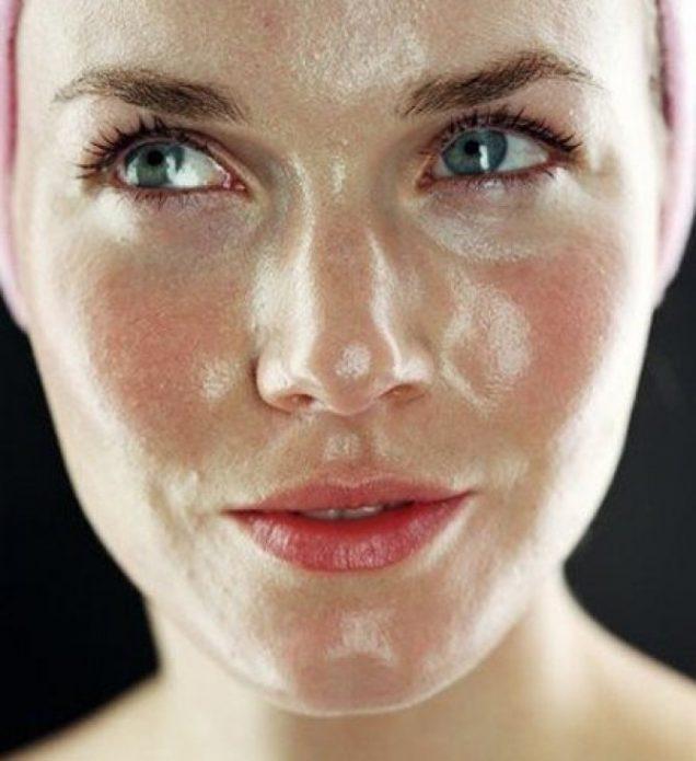 Жирная кожа у девушки