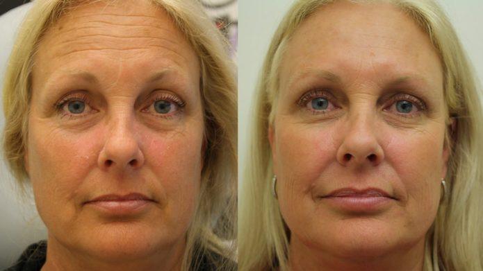 Лицо до и после ботокса