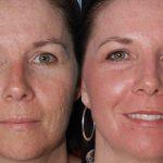 Лицо до и после применения касторовых масок