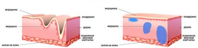 Схема действия филлеров