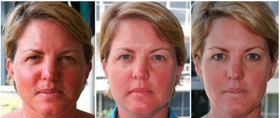 Эффект от микротокового лимфодренажа