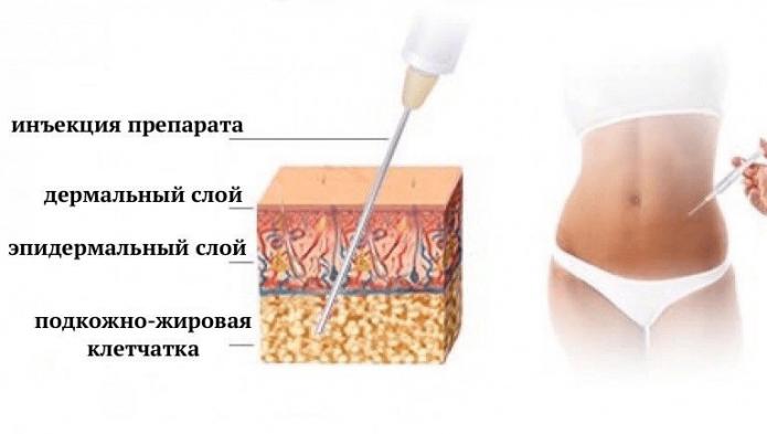 воздействие липолитиков на жировую клетчатку