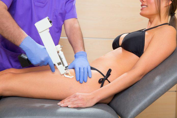 сеанс инъекционной антицеллюлитной терапии
