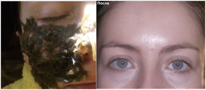 Результат подтягивающей маски с ламинарией