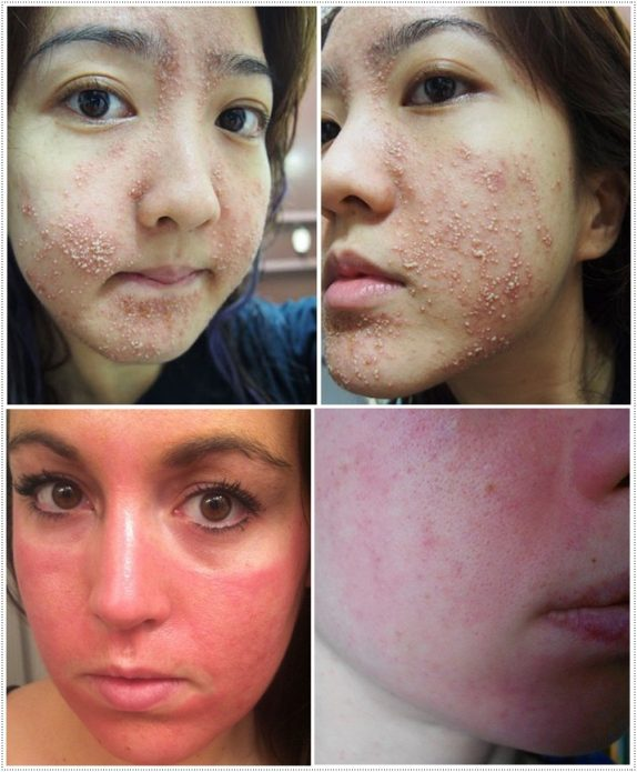 Аллергия на маски для лица