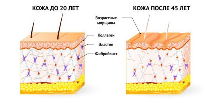 Иллюстрация зависимости состояния кожного покрова от количества и качества белковых волокон