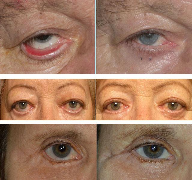 Фото пациентов до и после кантопластики