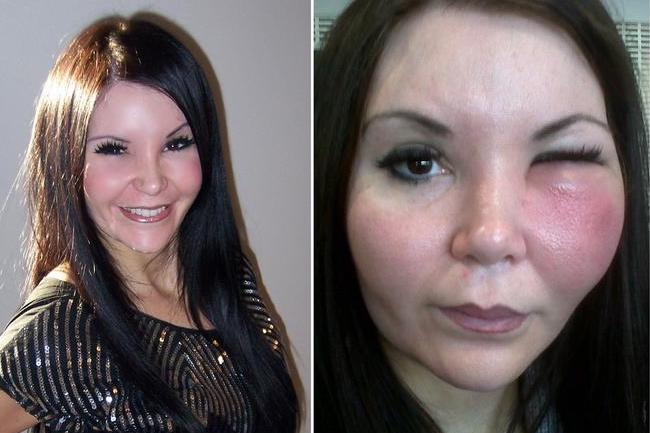 Лицо девушки до операции и с осложнениями после пластики