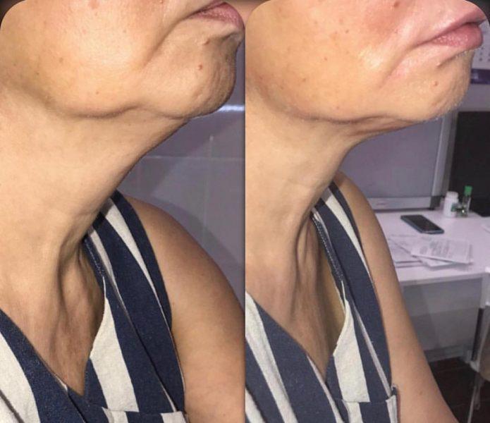 Коррекция формы шеи