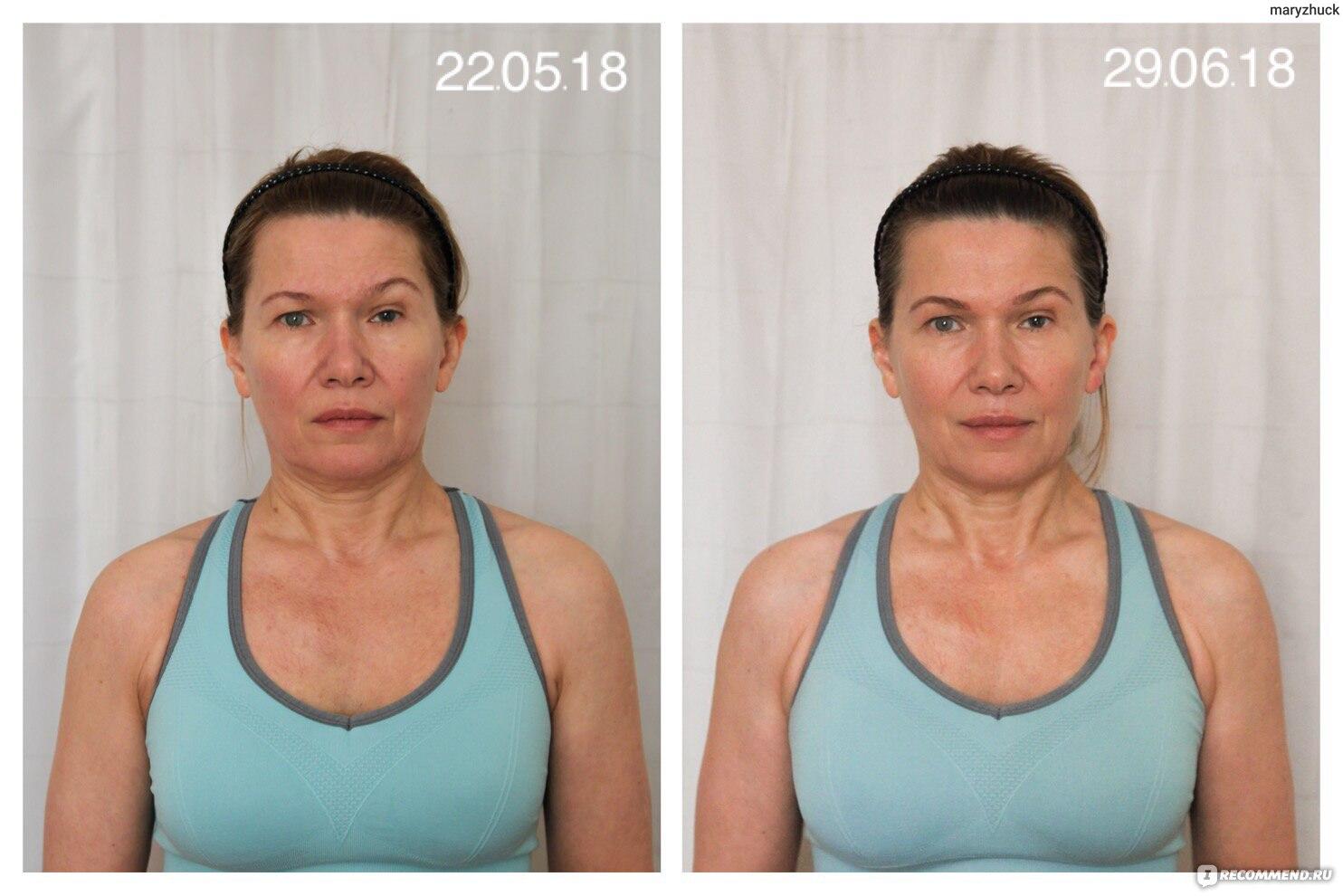 Ревитоника до и после фото