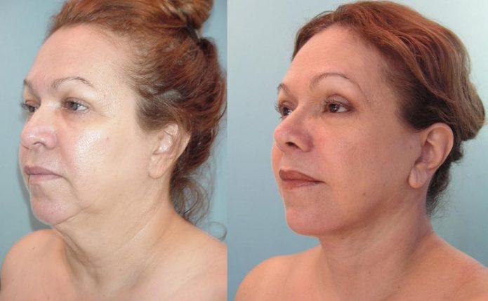 Лицо до и после нитевого лифтинга