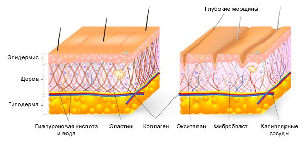Старение кожи: схема