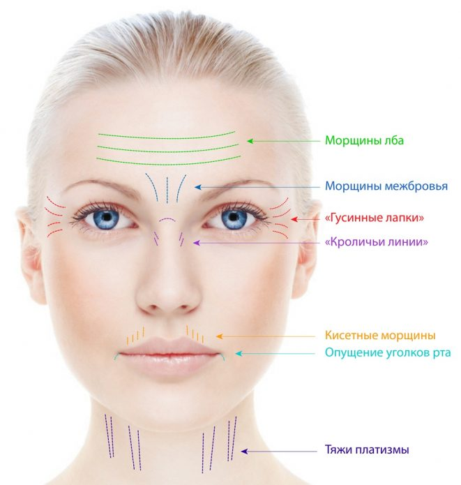 Схема: мелкие морщины лица