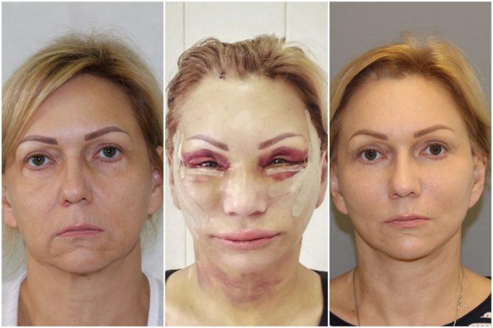 Хирургическая подтяжка лица: до, сразу после операции и через полгода