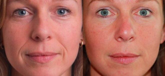 Фото до и после применения желатиновой маски