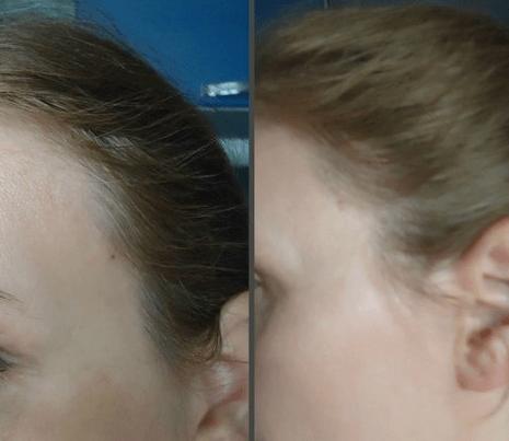 До и после шампуня