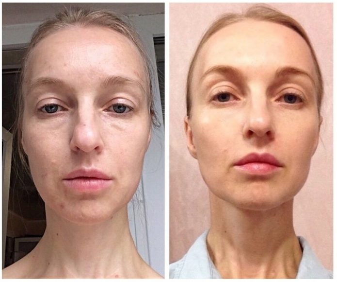 До и после лимфодренажного массажа лица