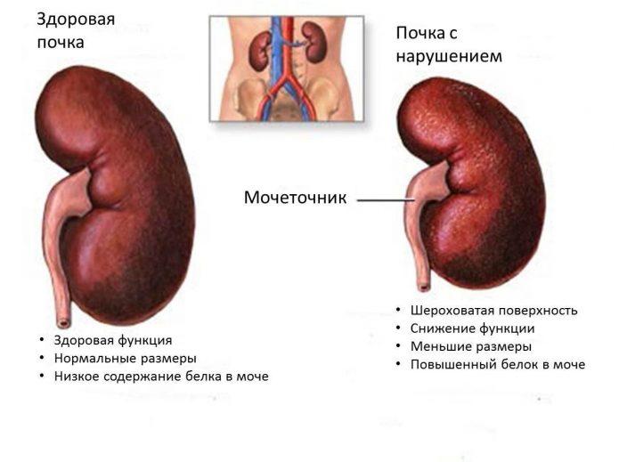 Различие между здоровой и больной почками: схема