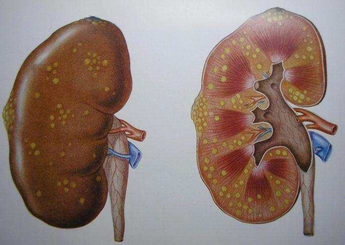 Гнойный пиелонефрит: схема