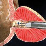 Эндоскопическая электро-вапоризация