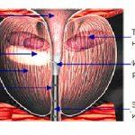Игольчатая трансуретральная абляция