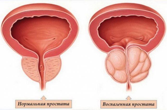 Предстательная железа при простатите