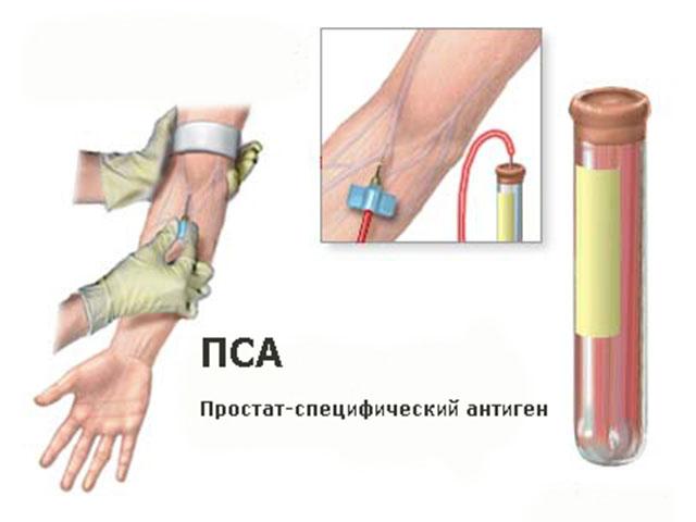 Анализ крови на ПСА: схема