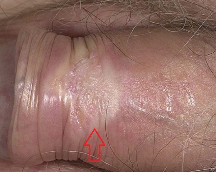 Склерозирующий лихен