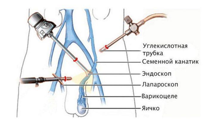 Лапароскопическая операция при варикоцеле